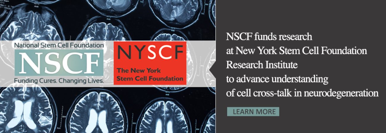NSCF_NYSCF Slider